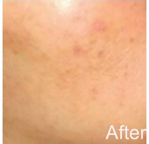 Anti Blemish Repair Cream