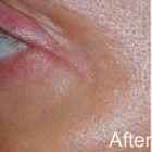 Eye Tight Laser Serum
