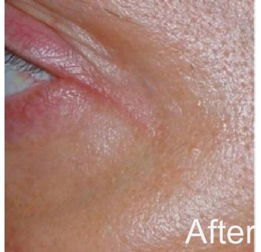 Eye Tight Laser Serum
