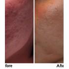 痘疤毛孔修復精華素 – 零毛孔