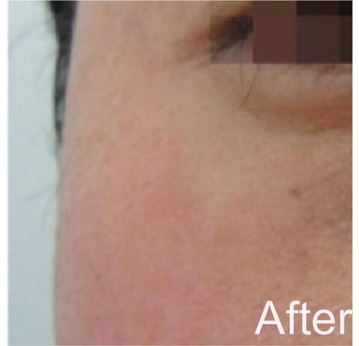基因激活除皺霜
