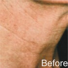 Non Scalpel Facelift II Serum