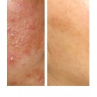 Akne Clear & Anti Blemish Repair Cream Set